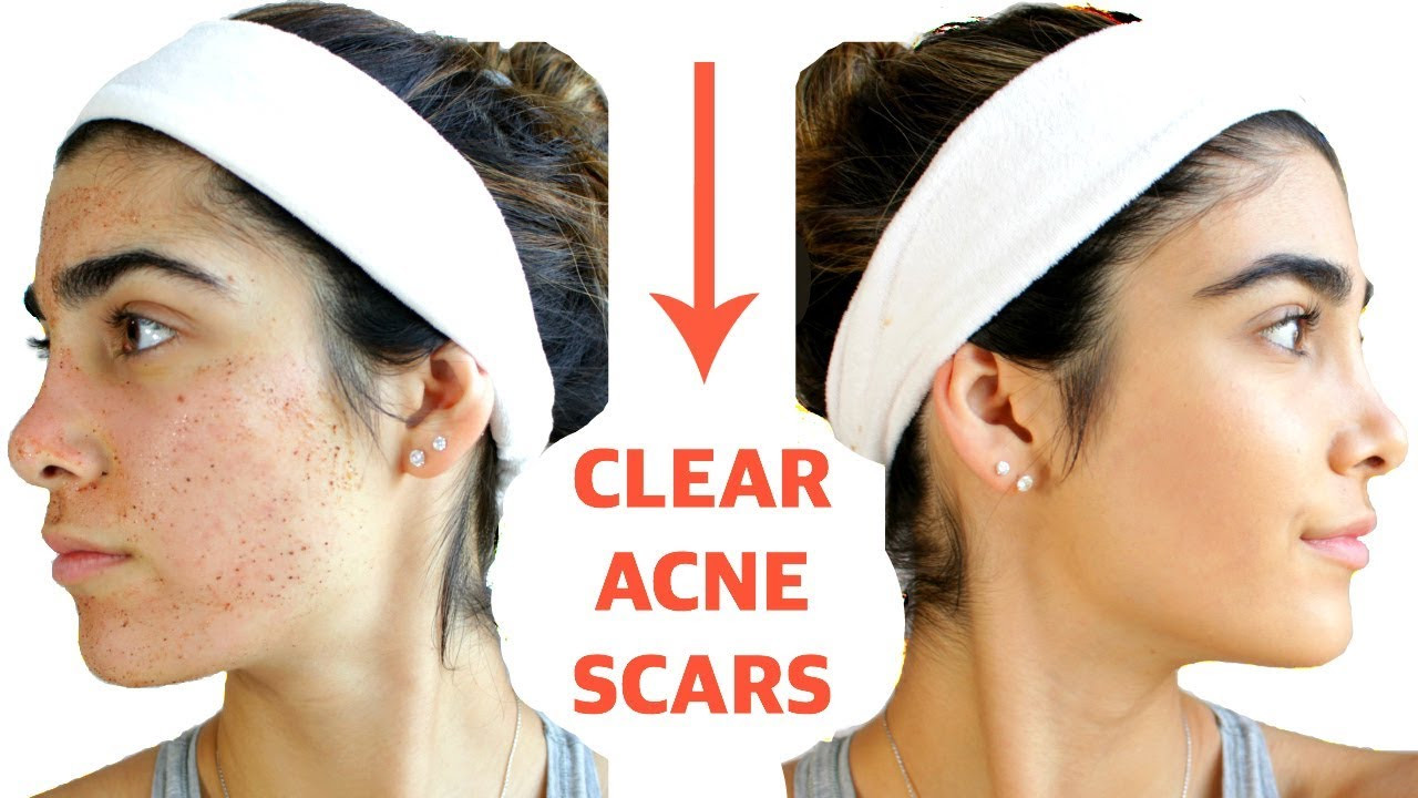 DIY Face Mask For Acne Scars  CLEAR ACNE SCARS FAST