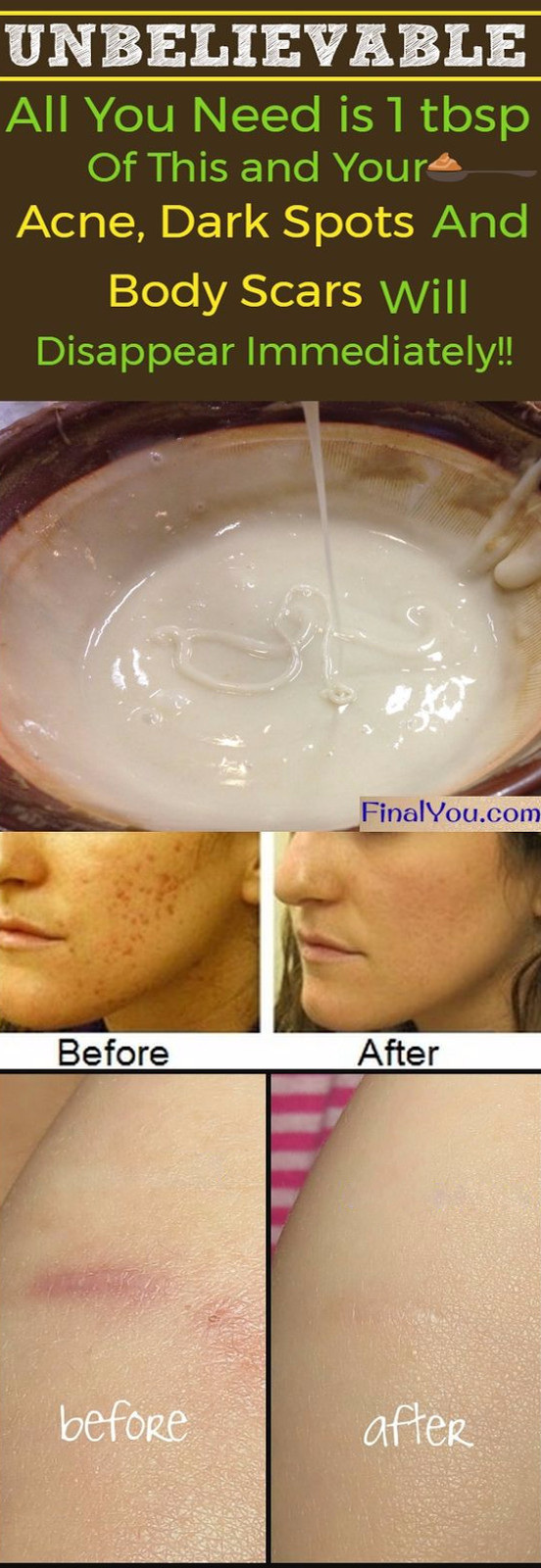 DIY Face Mask For Acne Scars  UNBELIEVABLE HOMEMADE FACE MASK TO GET RID OF SPOTS
