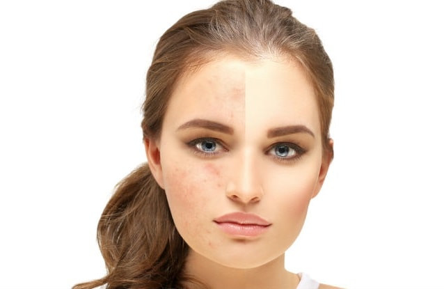 DIY Face Mask For Acne Scars  8 Effective Natural DIY Homemade Face Masks for Acne Scars