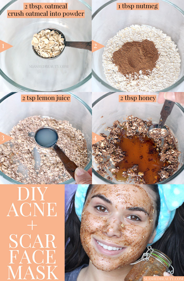 DIY Face Mask For Acne Scars  Best DIY Face Mask for Acne & Scars